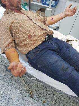 Εορδαία: Aδέσποτος σκύλος επιτέθηκε σε γυναίκα και παιδί και έστειλε στο Νοσοκομείο κτηνοτρόφο 8