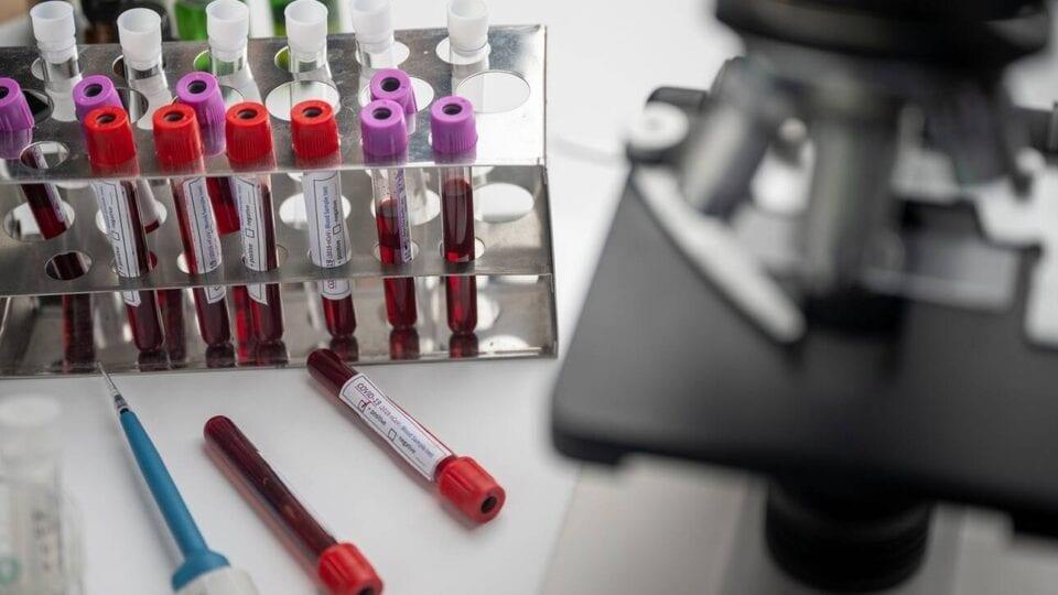 Αντιγριπικό εμβόλιο: Ποιοι θα πρέπει να το κάνουν φέτος
