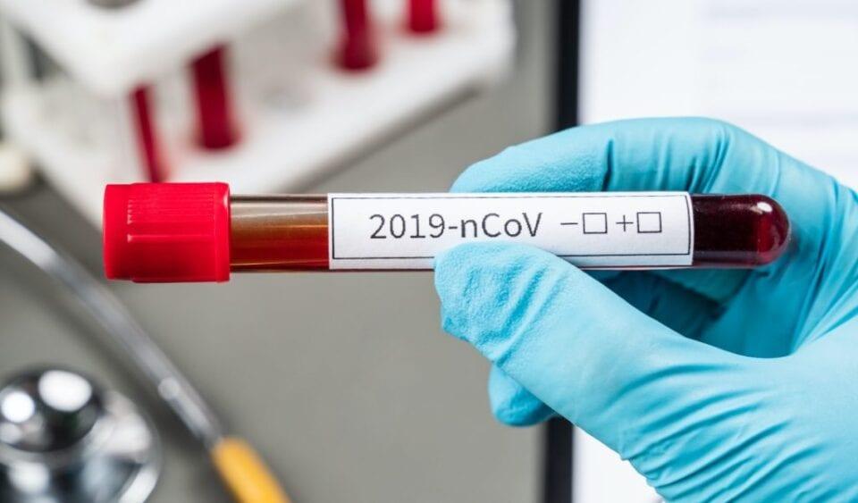Διατίμηση στα τεστ κορωνοϊού -40 ευρώ το μοριακό, 10 το rapid