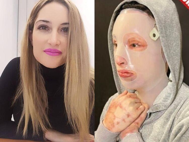 Επίθεση με βιτριόλι: Η Ιωάννα μιλά για πρώτη φορά και συγκλονίζει – Τι λέει για το περιστατικό, την υγεία και την δράστρια